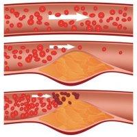 ¿El colesterol es enemigo o amigo?